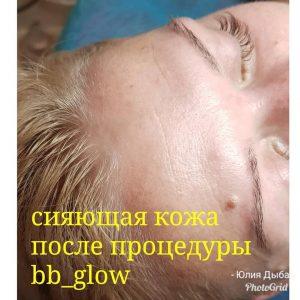 bb-glow
